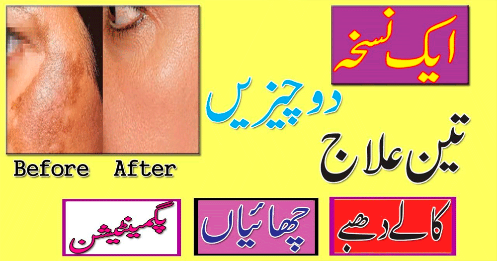 how to get rid of pimples instantly at home