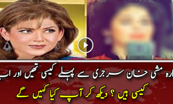 Mishi Khan Before and After Plastic Surgery